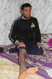 مركز مدينة الصدر : المواطن عباس حسن هاشم يناشد أهل الخير لمساعدته.
